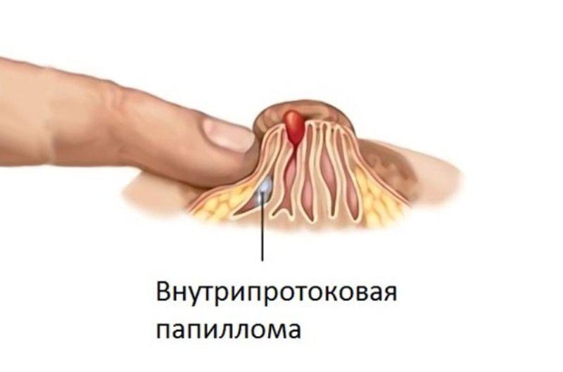 Внутрипротоковая папиллома, диагностика и лечение в спб