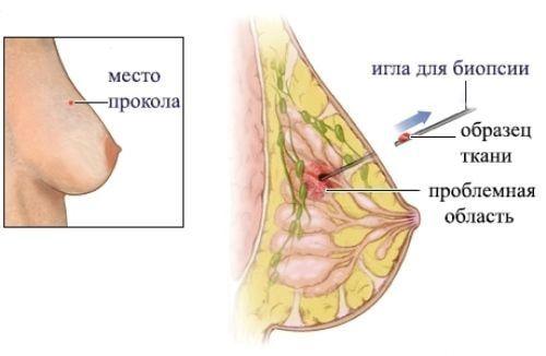 трепан-биопсия молочной железы в спб