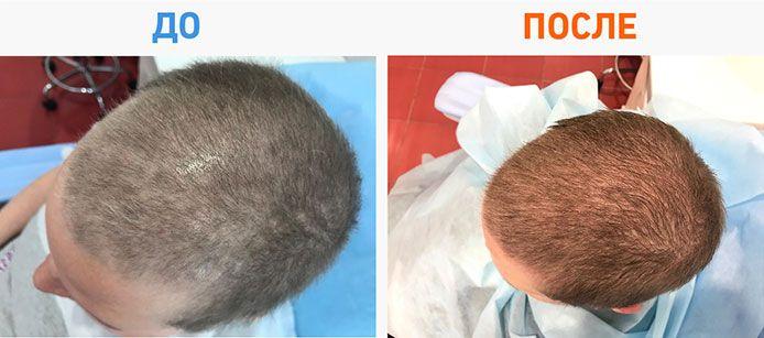 восстановить волосы после химиотерапии